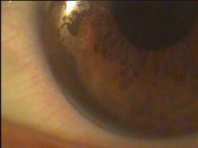 Die Oberfläche der Linse ist quasi zugesetzt, kann den Tränenfilm nicht mehr nutzen. Diese Linse bietet dem Kunden keinen Komfort mehr, ist unangenehm.